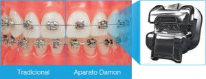 SP-Damon-Braces-Brackets-Comparison